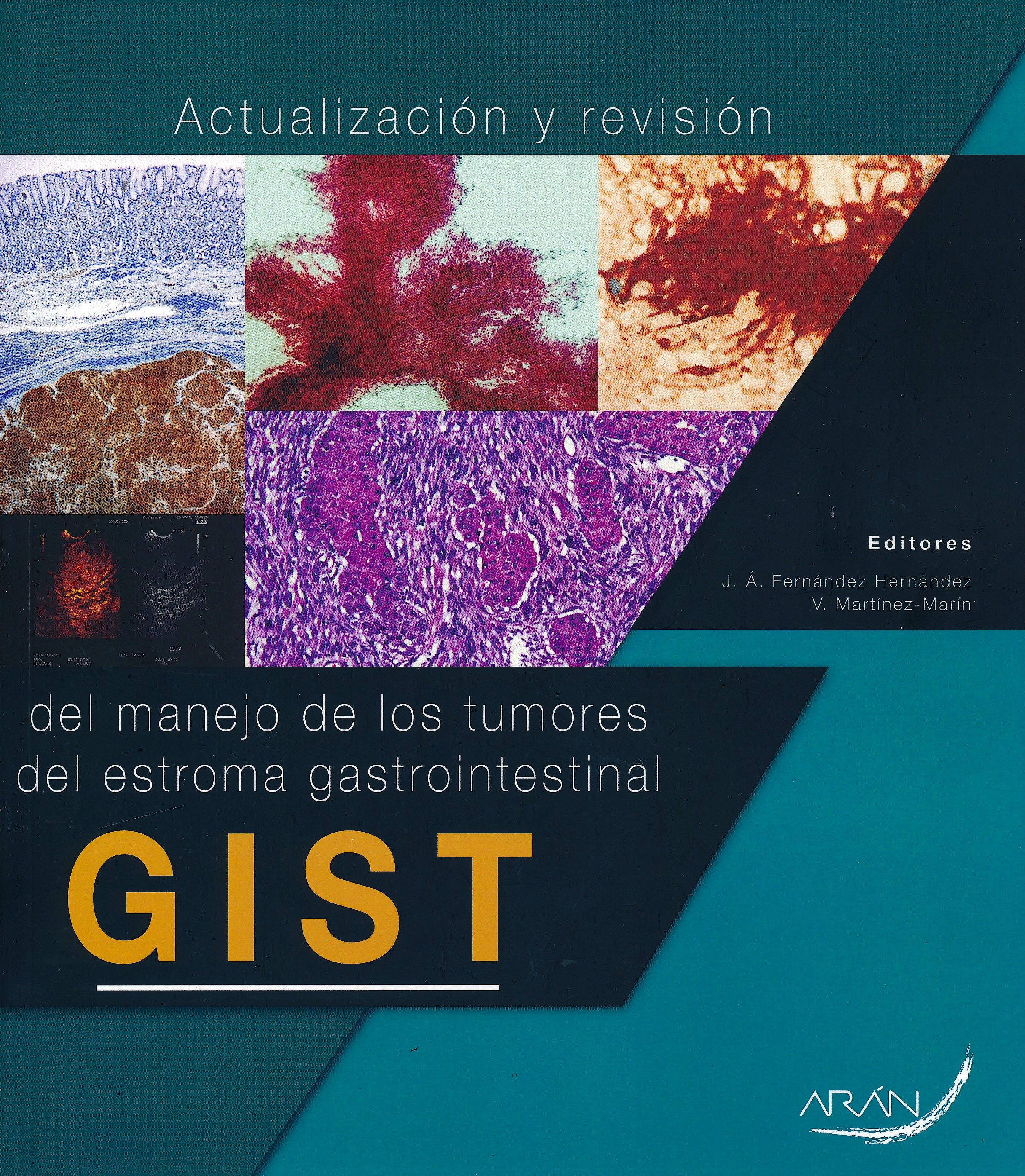 Portada del libro 9788417046569 Actualización y Revisión del Manejo de los Tumores del Estroma Gastrointestinal (GIST)