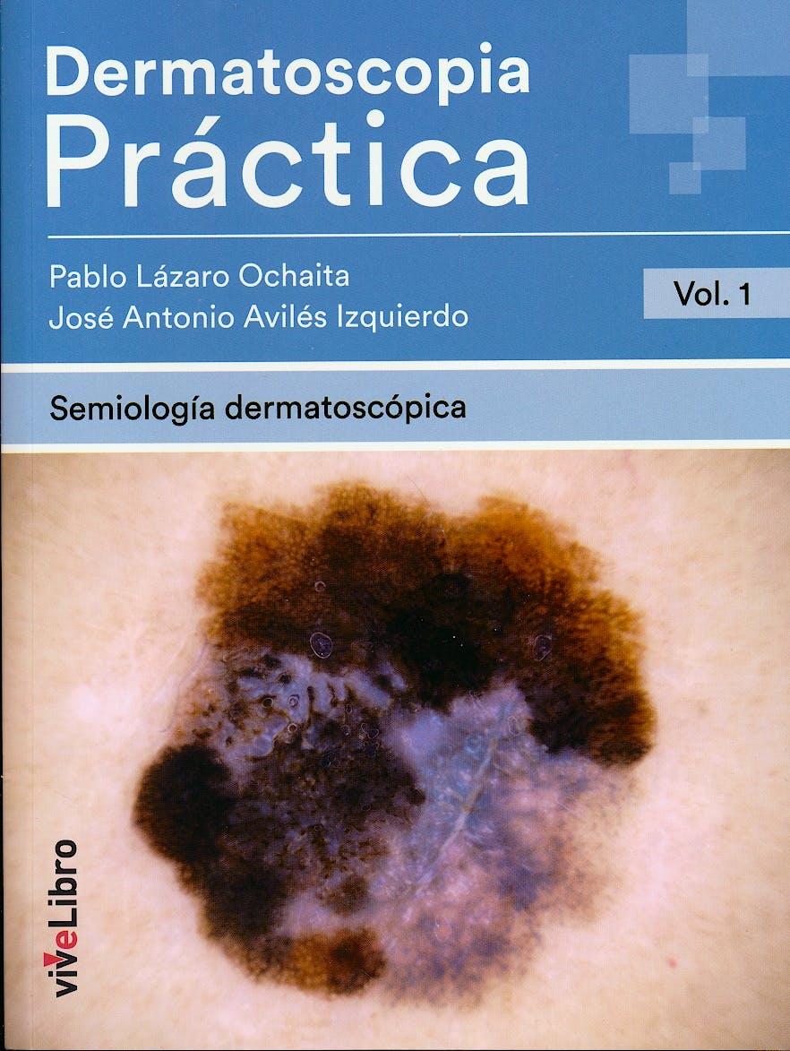 Portada del libro 9788417089399 Dermatoscopia Práctica, Vol. 1: Semiología Dermatoscópica