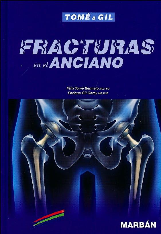 Portada del libro 9788417184919 Fracturas en el Anciano