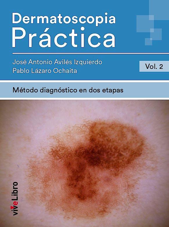 Portada del libro 9788417689834 Dermatoscopia Práctica, Vol. 2: Método Diagnóstico en Dos Etapas