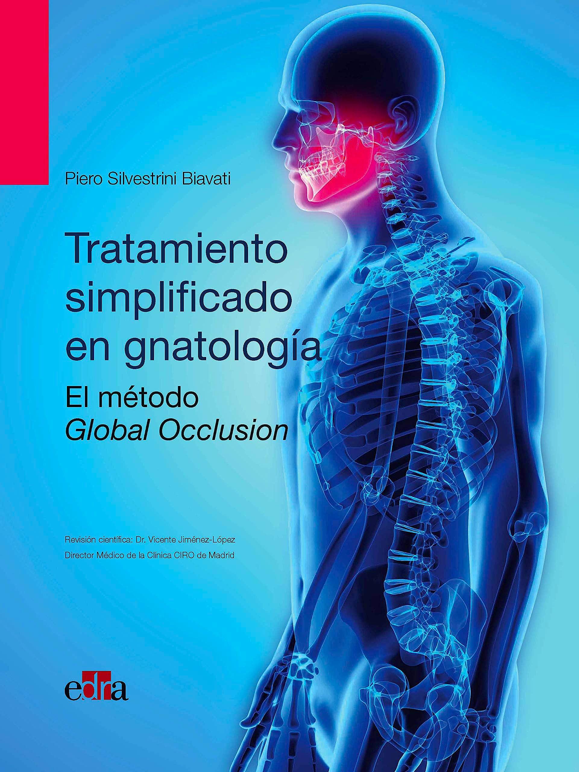 Portada del libro 9788418020094 Tratamiento Simplificado en Gnatología. El Método Global Occlusion