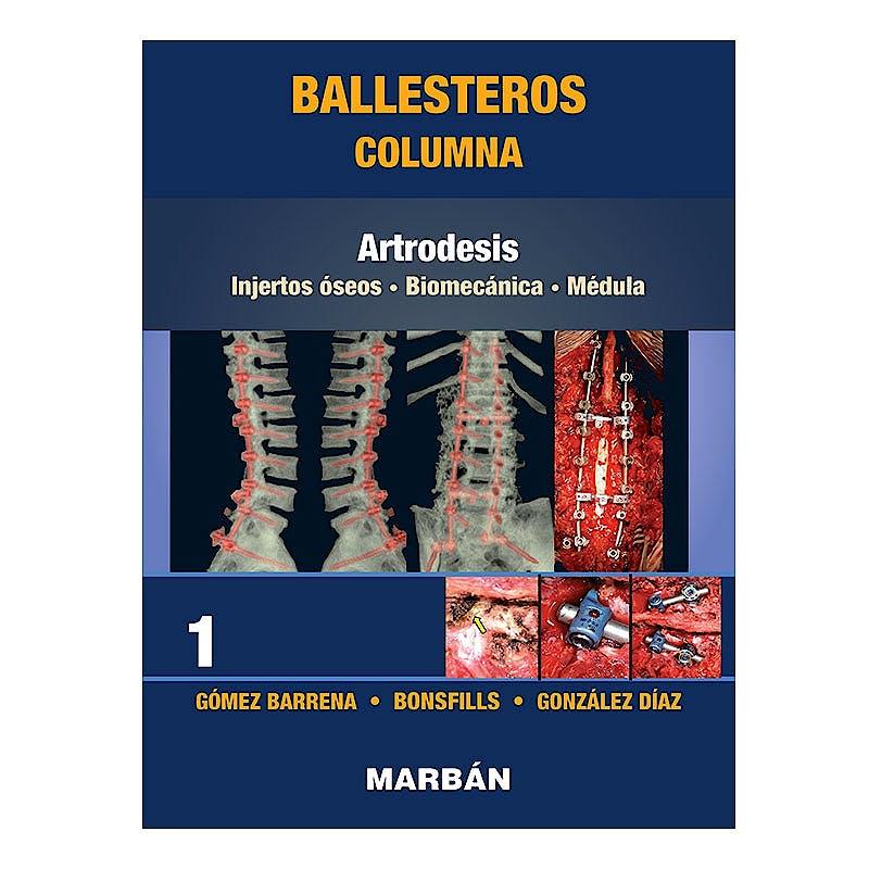 Portada del libro 9788418068478 Ballesteros Columna Tomo 1: Artrodesis. Injertos Óseos. Biomecánica. Médula (Reimpresión 2021)