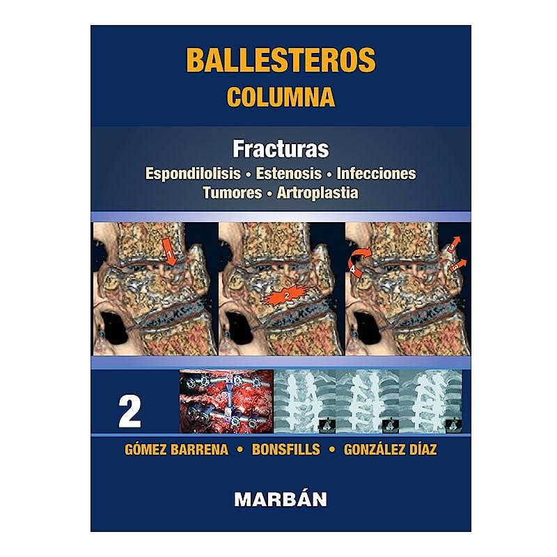 Portada del libro 9788418068485 Ballesteros Columna Tomo 2: Fracturas. Espondilolisis. Estenosis. Infecciones. Tumores. Artroplastia (Reimpresión 2021)