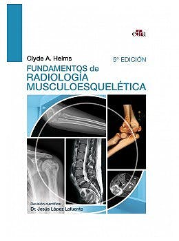 Portada del libro 9788418706080 Fundamentos de Radiología Musculoesquelética