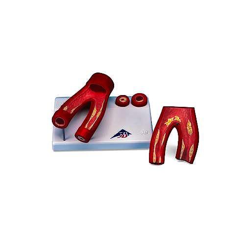 Modelo de Arteriosclerosis con Corte Transversal Arteria 2 Partes