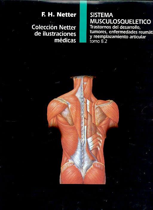 Portada del libro 9788445802229 Sistema Musculosquelético. Trastornos del Desarrollo, Tumores, Enfermedades Reumáticas y Reemplazamiento Articular. Colección Netter Tomo 8.2