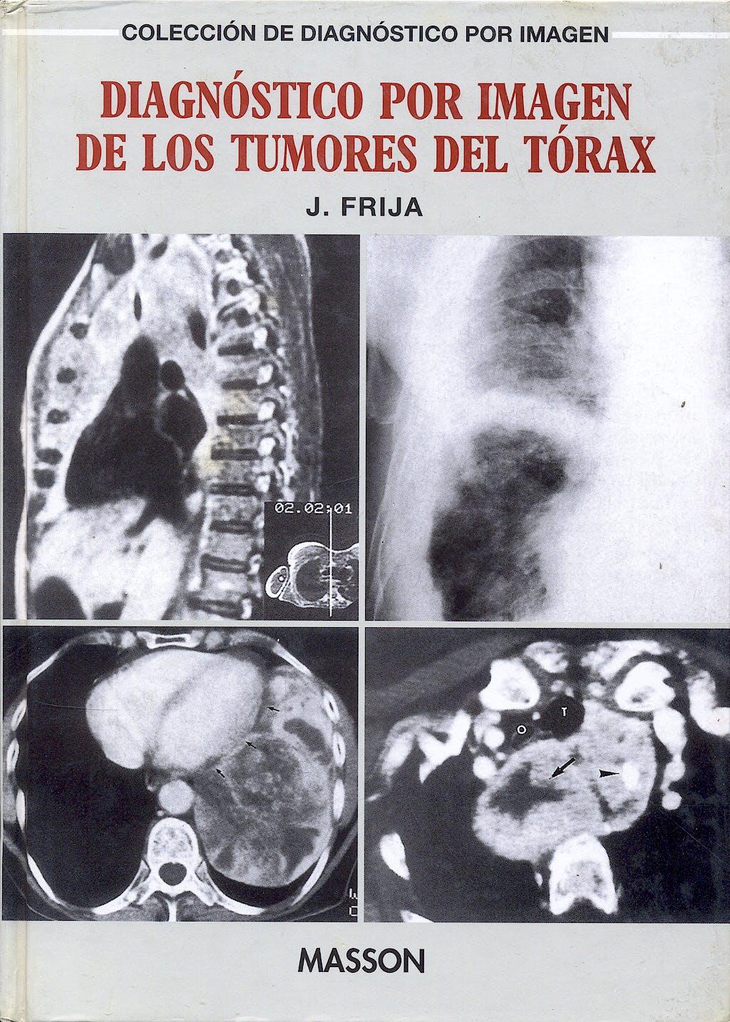 Portada del libro 9788445804117 Diagnostico por Imagen de los Tumores del Torax