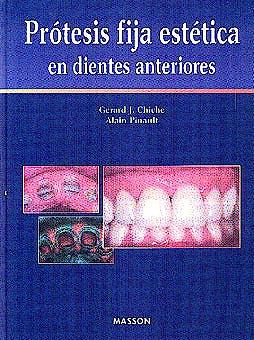 Portada del libro 9788445804414 Prótesis Fija Estética en Dientes Anteriores