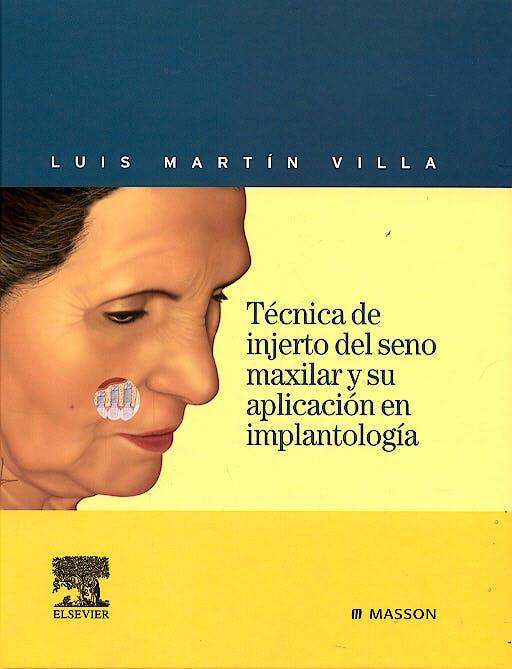 Portada del libro 9788445815168 Técnica de Injerto del Seno Maxilar y Su Aplicación en Implantología