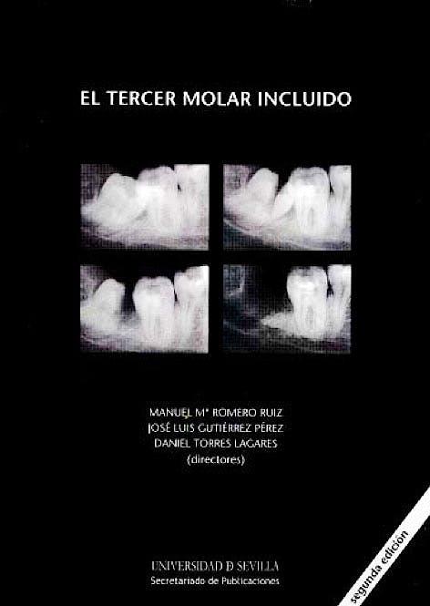 Portada del libro 9788447212569 El Tercer Molar Incluido