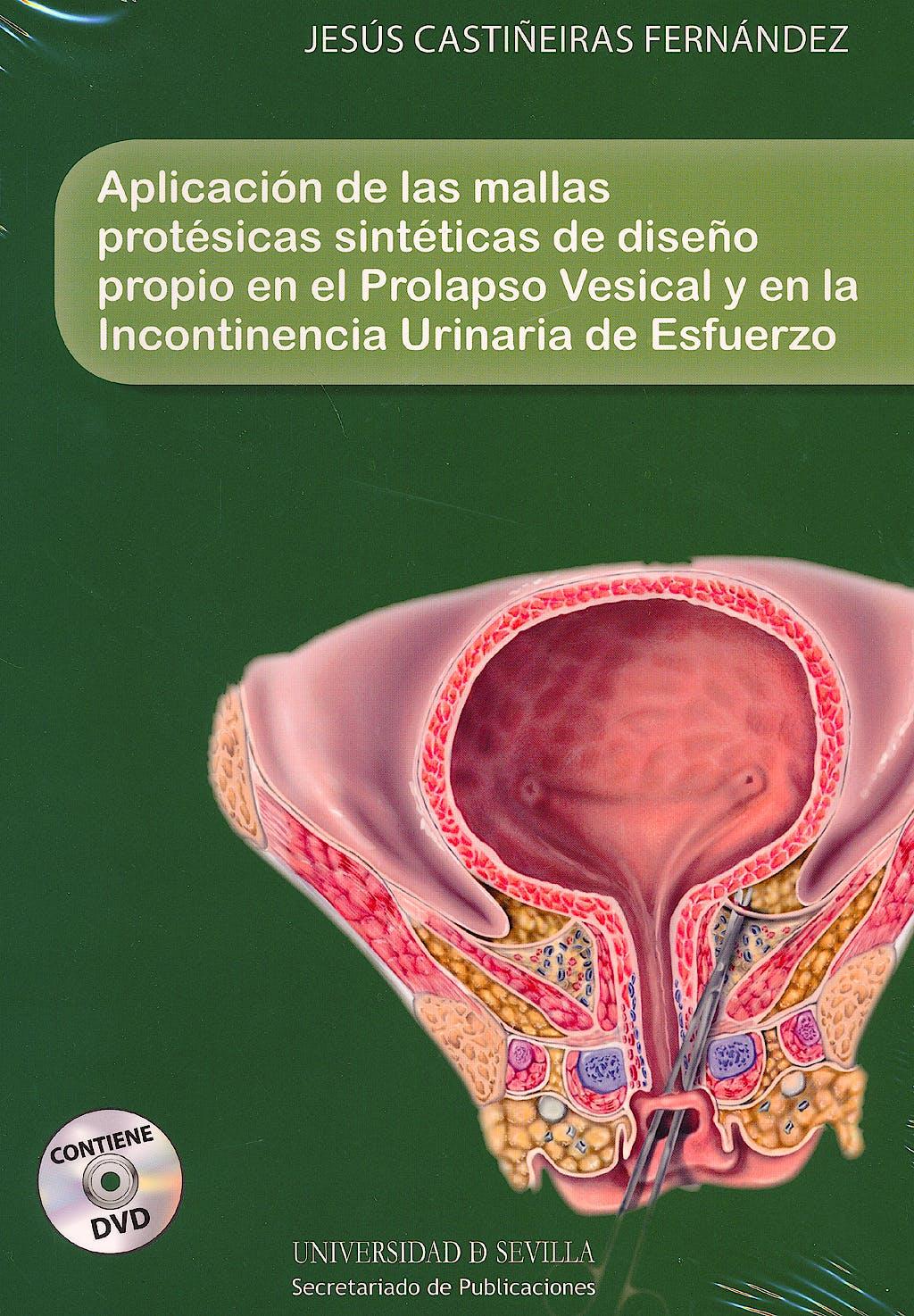 Portada del libro 9788447215287 Aplicacion de las Mallas Protesicas Sinteticas de Diseño Propio en el Prolapso Vesical y en la Incontinencia Urinaria de Esfuerzo + Dvd