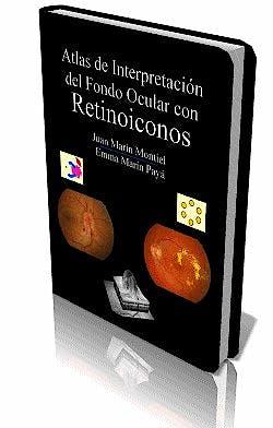 Portada del libro 9788460888338 Atlas de Interpretación del Fondo Ocular con Retinoiconos