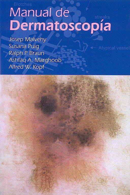 Portada del libro 9788461111961 Manual de Dermatoscopía