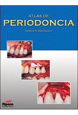 Portada del libro 9788461185429 Atlas de Periodoncia