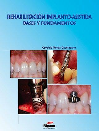 Portada del libro 9788461217861 Rehabilitacion Implanto-Asistida. Bases y Fundamentos