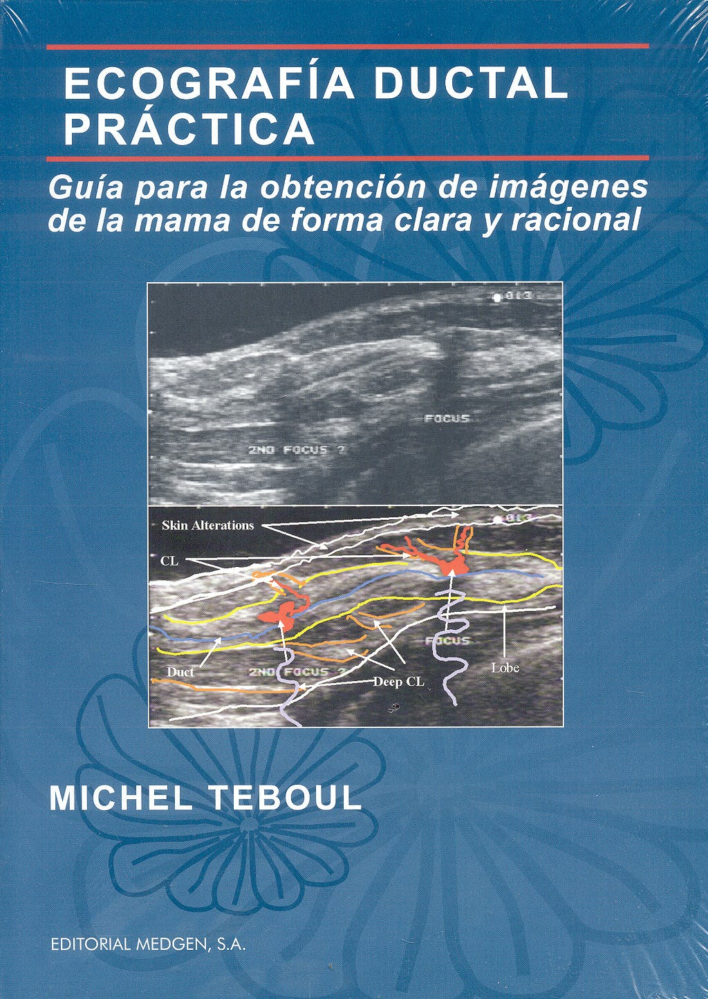 Portada del libro 9788461296439 Ecografía Ductal Práctica. Guía para la Obtención de Imágenes de la Mama de Forma Clara y Racional