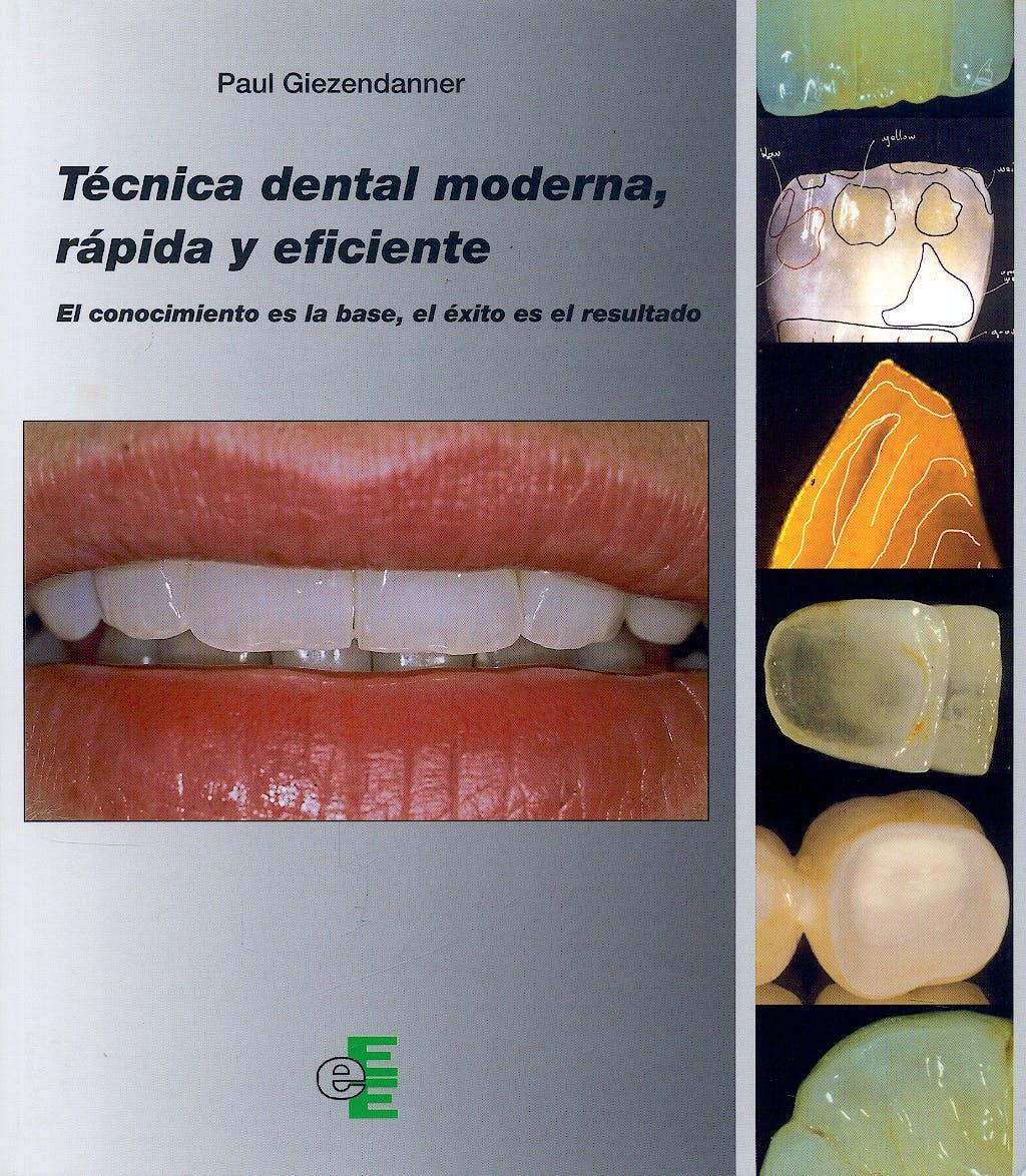 Portada del libro 9788461363827 Tecnica Dental Moderna, Rapida y Eficiente