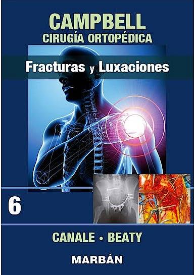 Portada del libro 9788471011930 CAMPBELL Cirugía Ortopédica, Tomo 6: Fracturas y Luxaciones.