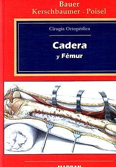 Portada del libro 9788471012340 Cirugia Ortopedica, Vol. 3: Cadera y Femur