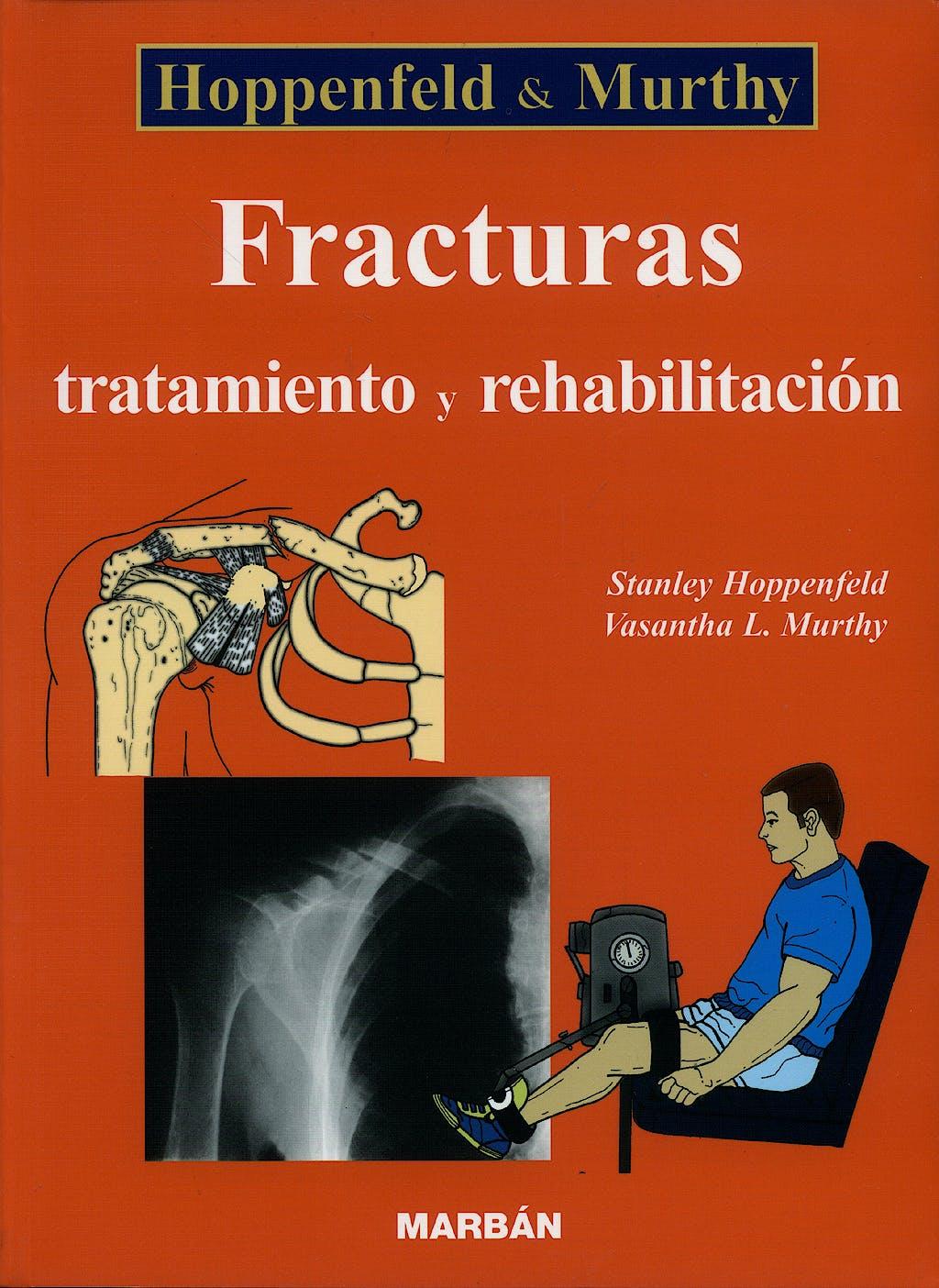Portada del libro 9788471013408 Fracturas. Tratamiento y Rehabilitación
