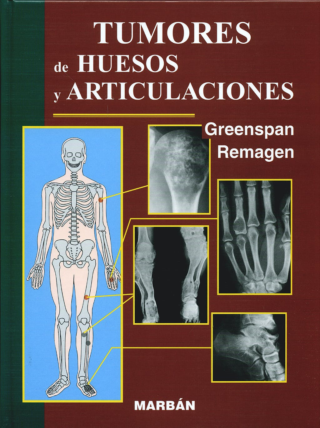 Portada del libro 9788471013637 Tumores de Huesos y Articulaciones