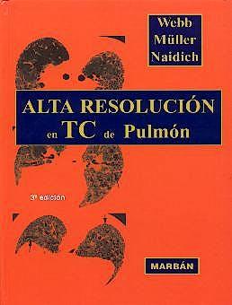 Portada del libro 9788471013682 Alta Resolución en TC de Pulmón