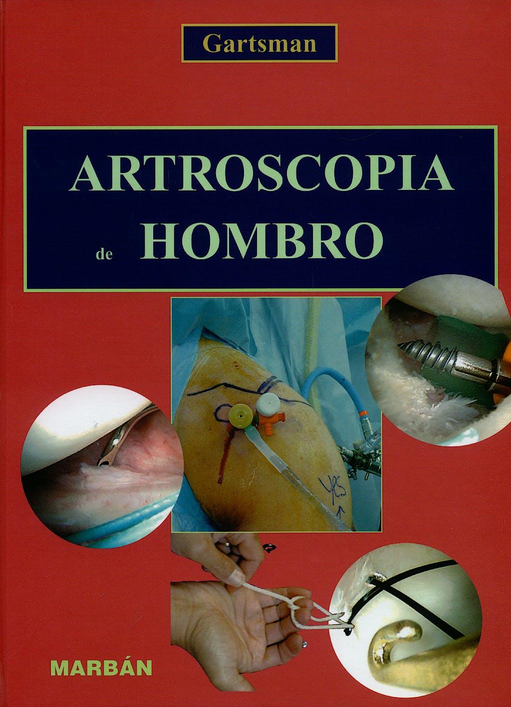 Portada del libro 9788471014443 Artroscopia de Hombro