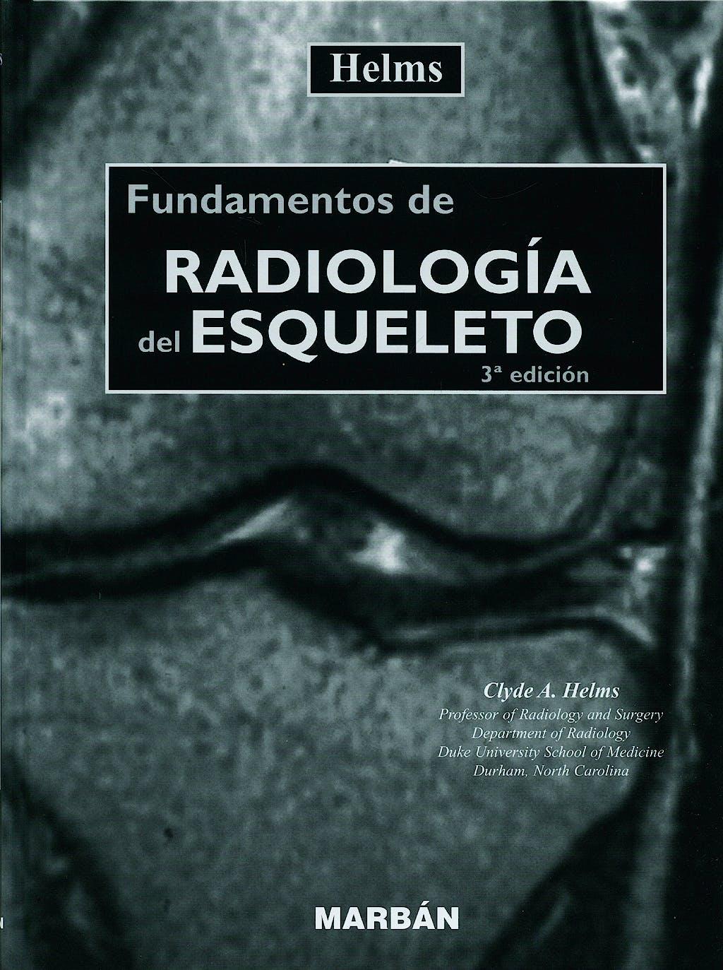 Portada del libro 9788471015044 Fundamentos de Radiología del Esqueleto