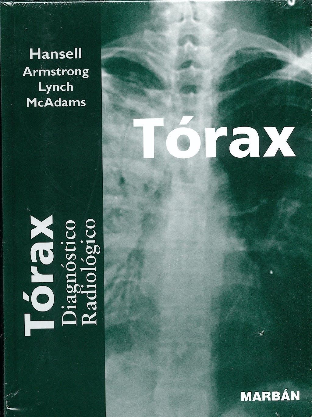 Portada del libro 9788471015105 Torax. Diagnostico Radiologico