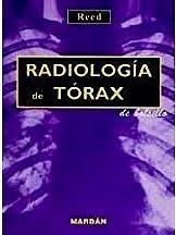 Portada del libro 9788471015266 Radiología de Tórax de Bolsillo