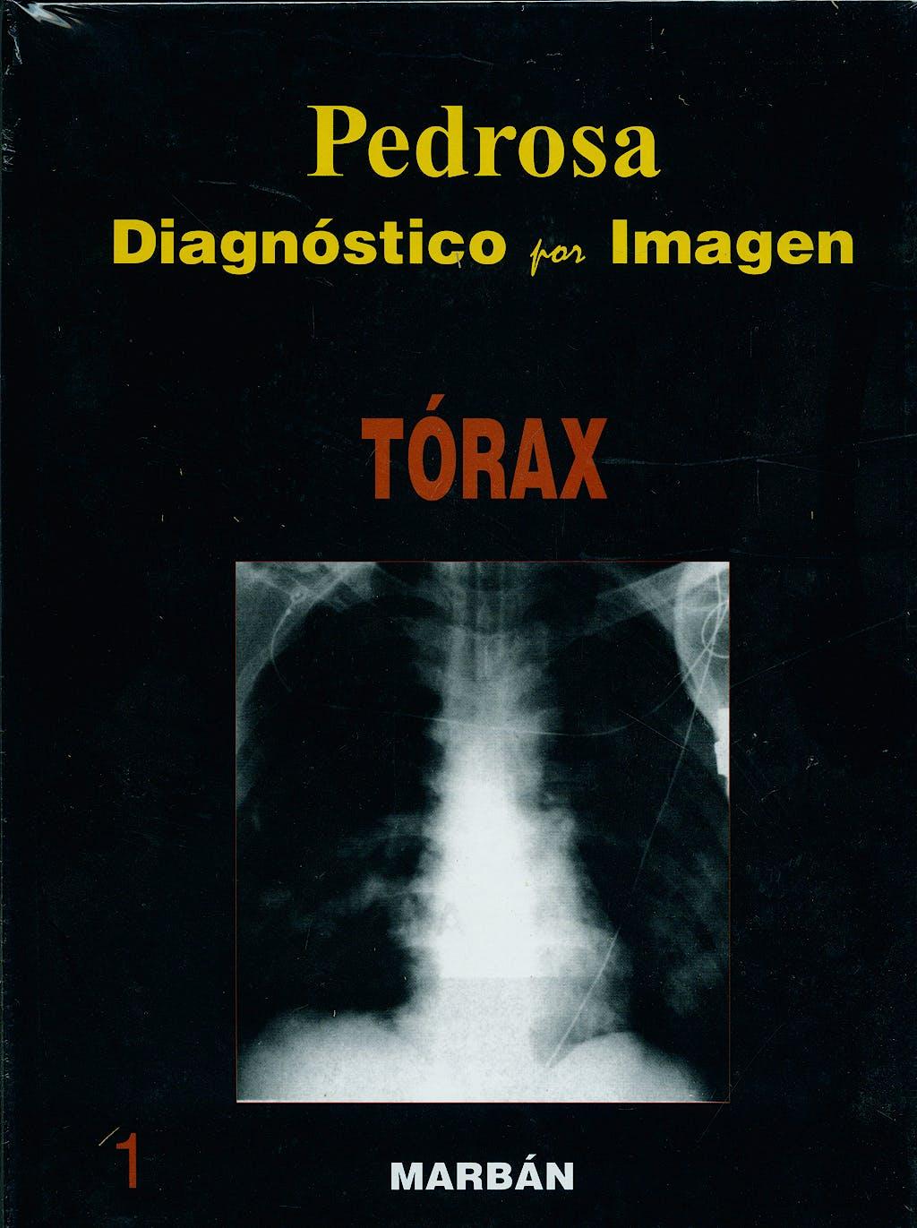 Portada del libro 9788471015938 Diagnóstico por Imagen, Vol. 1: Tórax (Tapa Dura)