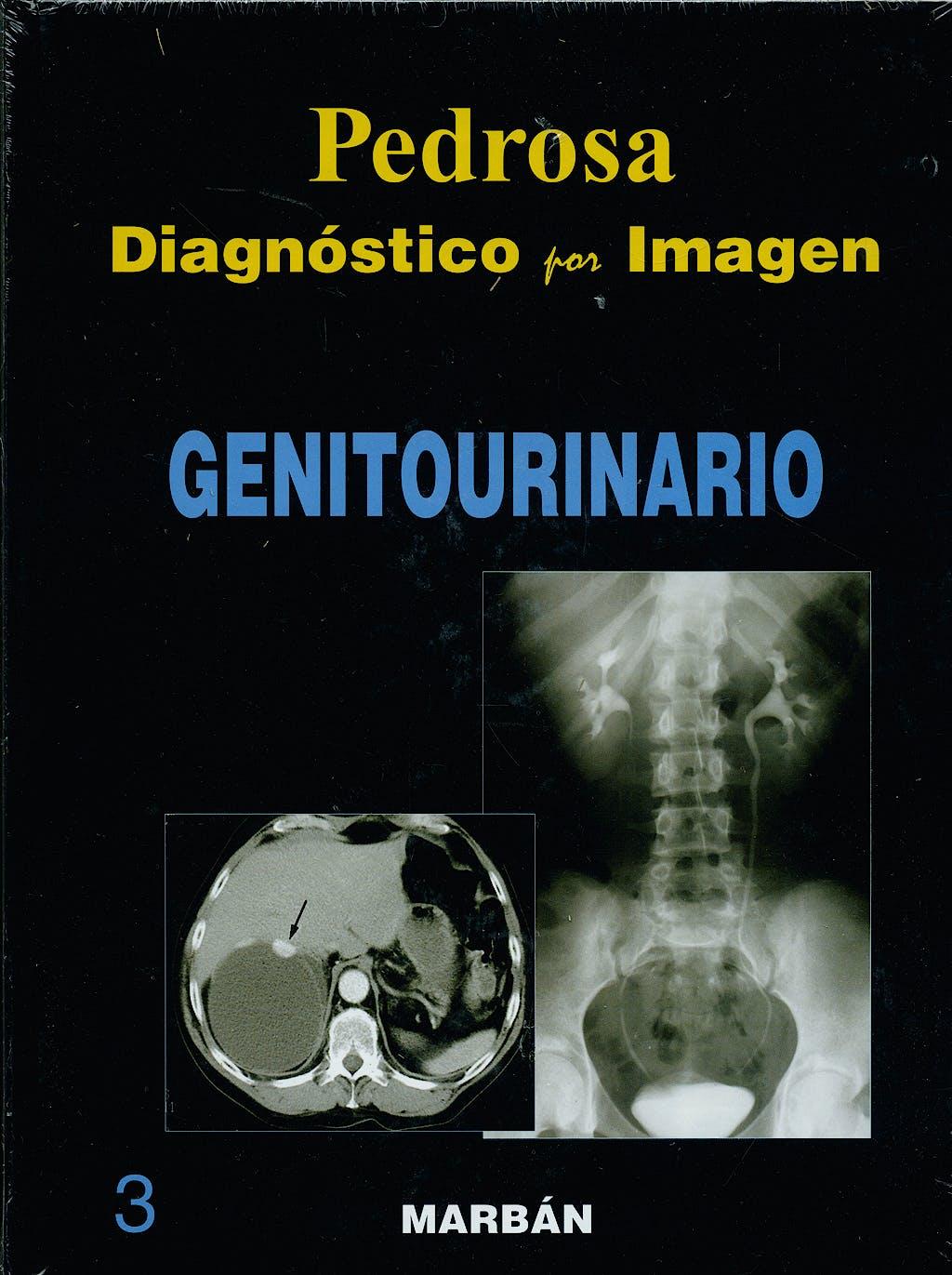 Portada del libro 9788471015952 Diagnóstico por Imagen, Vol. 3: Genitourinario (Tapa Dura)
