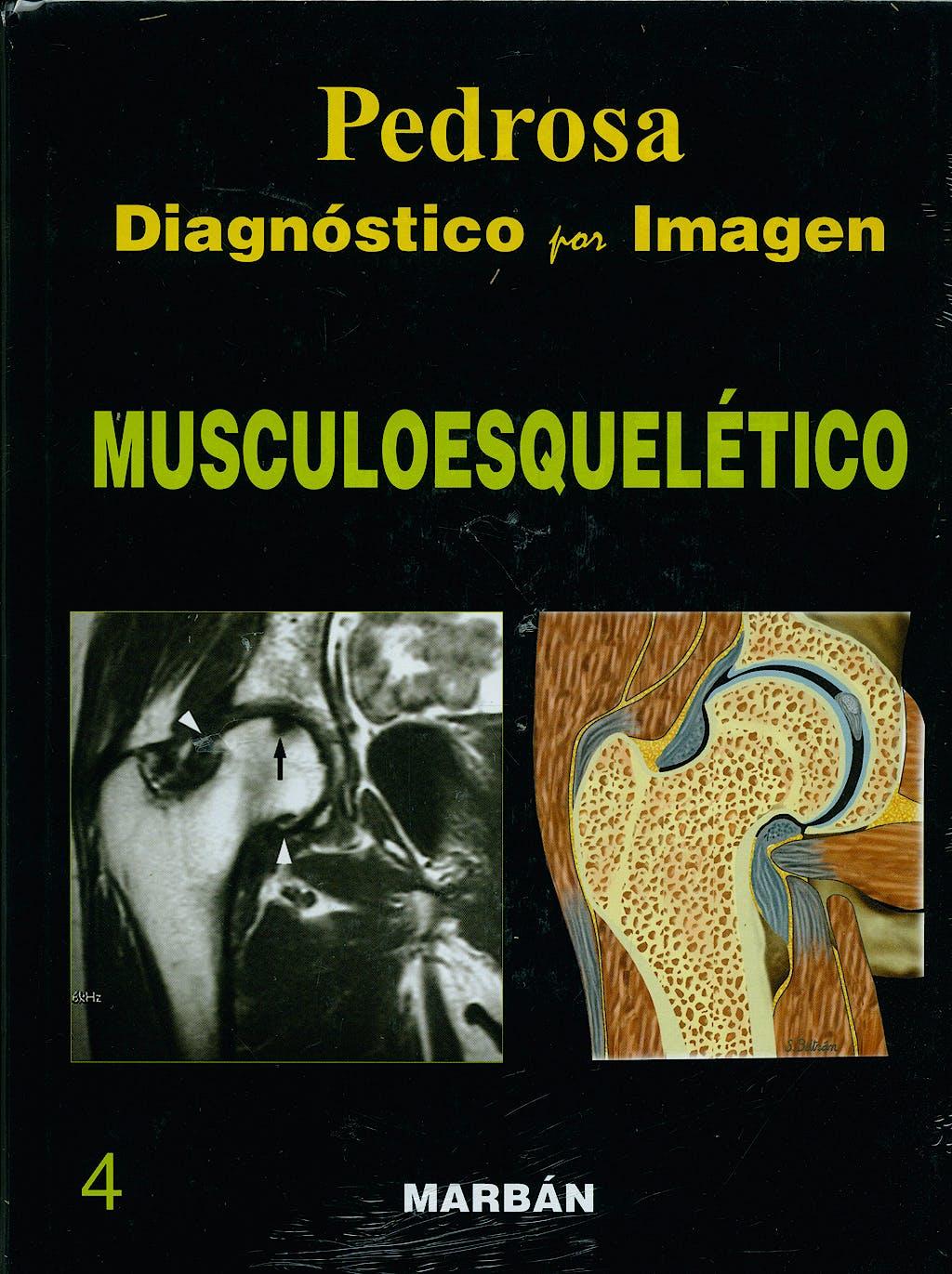 Portada del libro 9788471015969 Diagnóstico por Imagen, Vol. 4: Musculoesquelético (Tapa Dura)