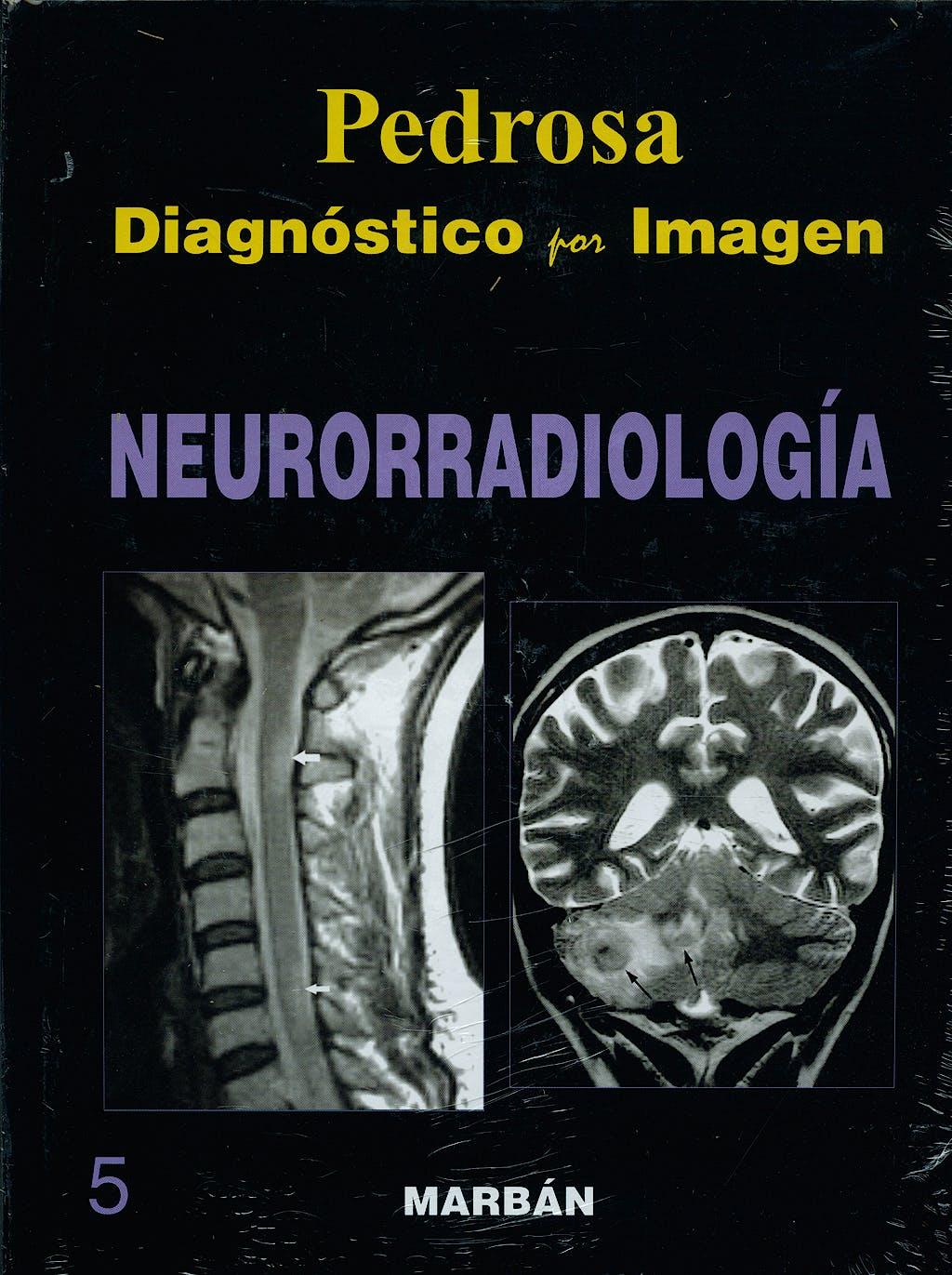 Portada del libro 9788471015976 Diagnóstico por Imagen, Vol. 5: Neurorradiología (Tapa Dura)