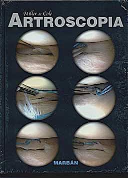 Portada del libro 9788471017086 Artroscopia (Tapa Dura)
