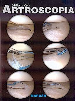 Portada del libro 9788471017093 Artroscopia (Tapa Blanda)