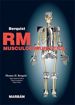 Portada del libro 9788471017116 Rm Musculoesqueletica (Tapa Blanda)
