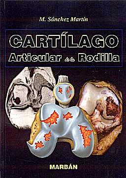 Portada del libro 9788471017161 Cartilago Articular de la Rodilla