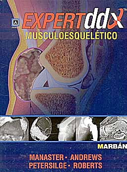 Portada del libro 9788471017314 Expert DDX: Musculoesquelético