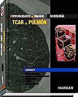 Portada del libro 9788471017482 TCAR de Pulmón (Especialidades en Imagen: Radiología)