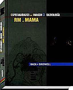 Portada del libro 9788471017635 RM de Mama (Especialidades en Imagen: Radiología)