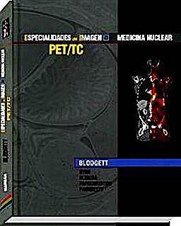 Portada del libro 9788471017659 PET/TC. Imagen Oncológica con PET/TC Diagnóstica (Especialidades en Imagen: Radiología-Oncología)