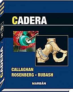 Portada del libro 9788471017925 Cadera