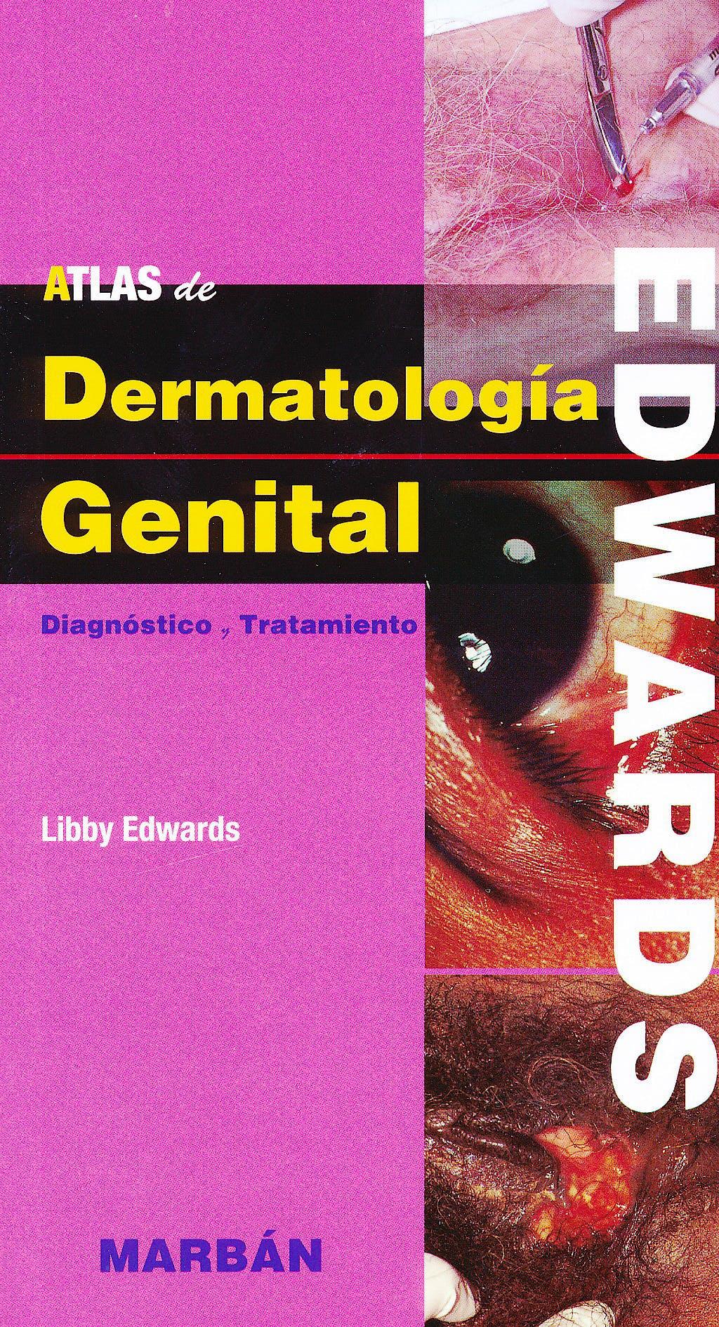 Portada del libro 9788471018137 Atlas de Dermatología Genital
