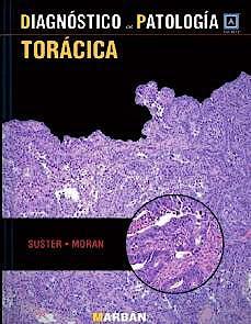 Portada del libro 9788471018373 Diagnóstico en Patología: Torácica