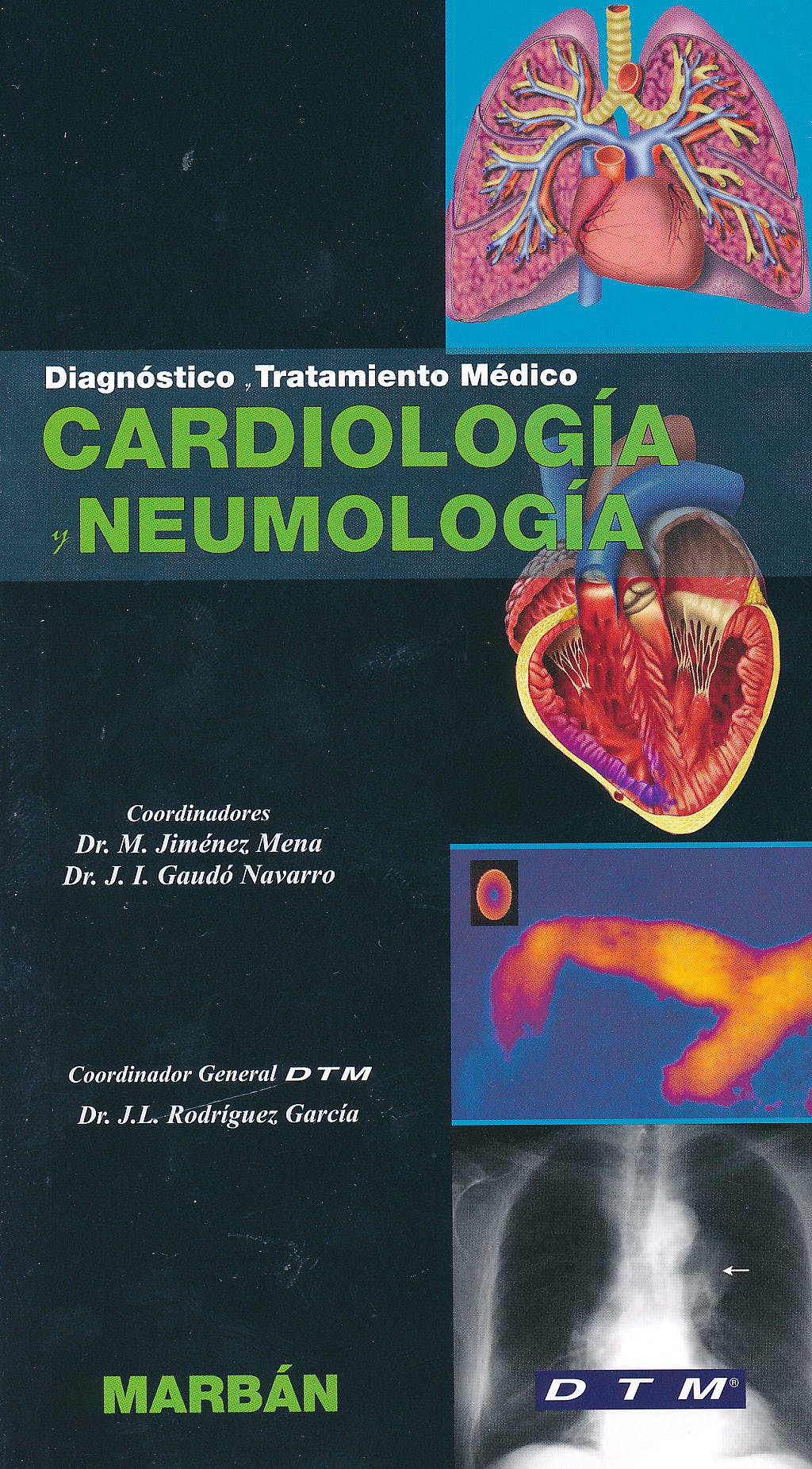 Portada del libro 9788471018410 Cardiología y Neumología. Diagnóstico y Tratamiento Médico DTM