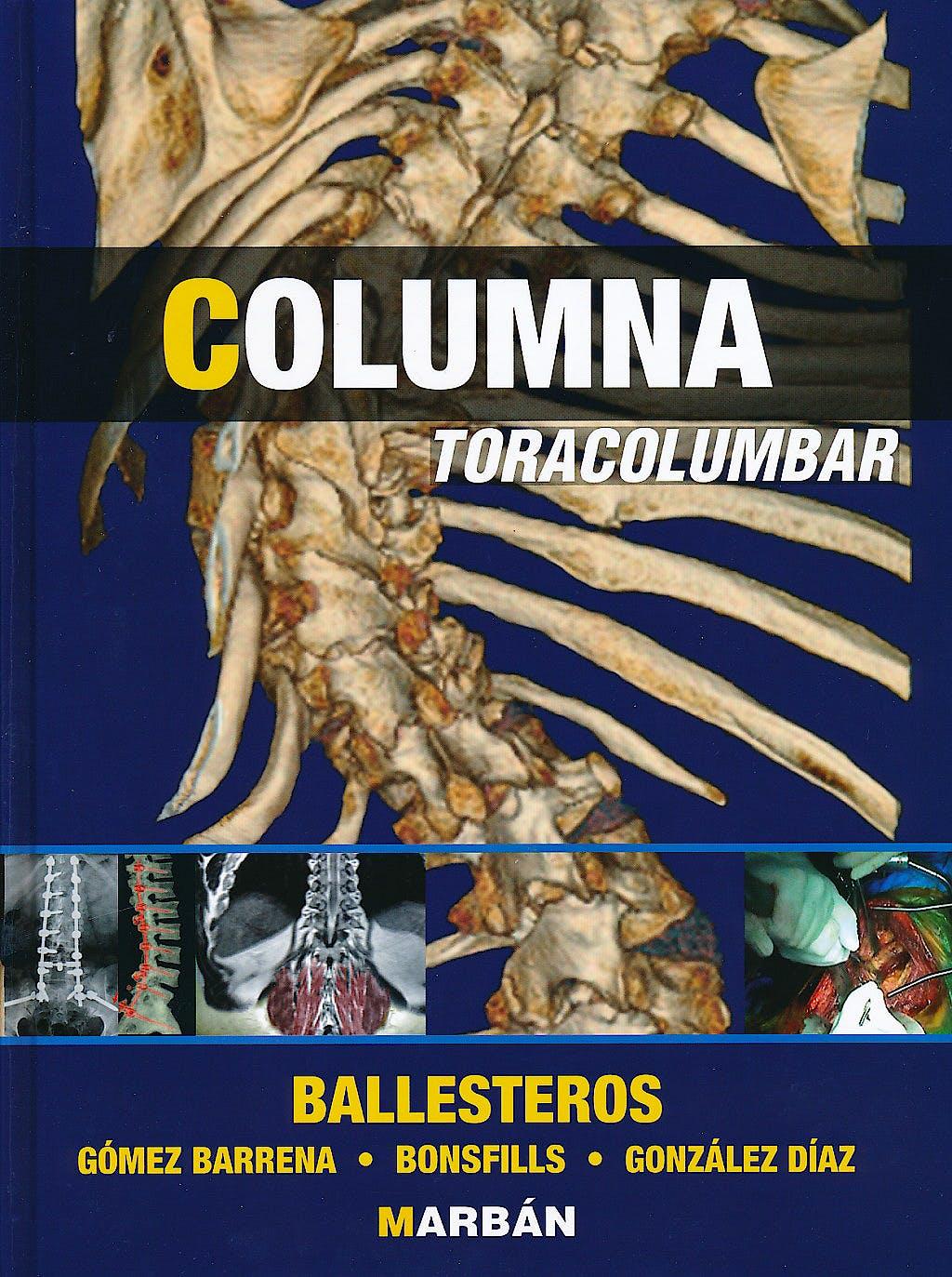 Portada del libro 9788471018656 Columna Toracolumbar