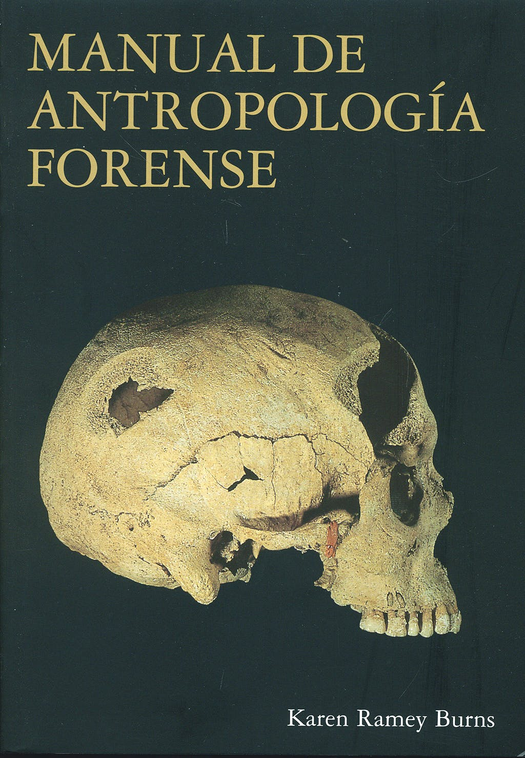 Portada del libro 9788472903968 Manual de Antropologia Forense