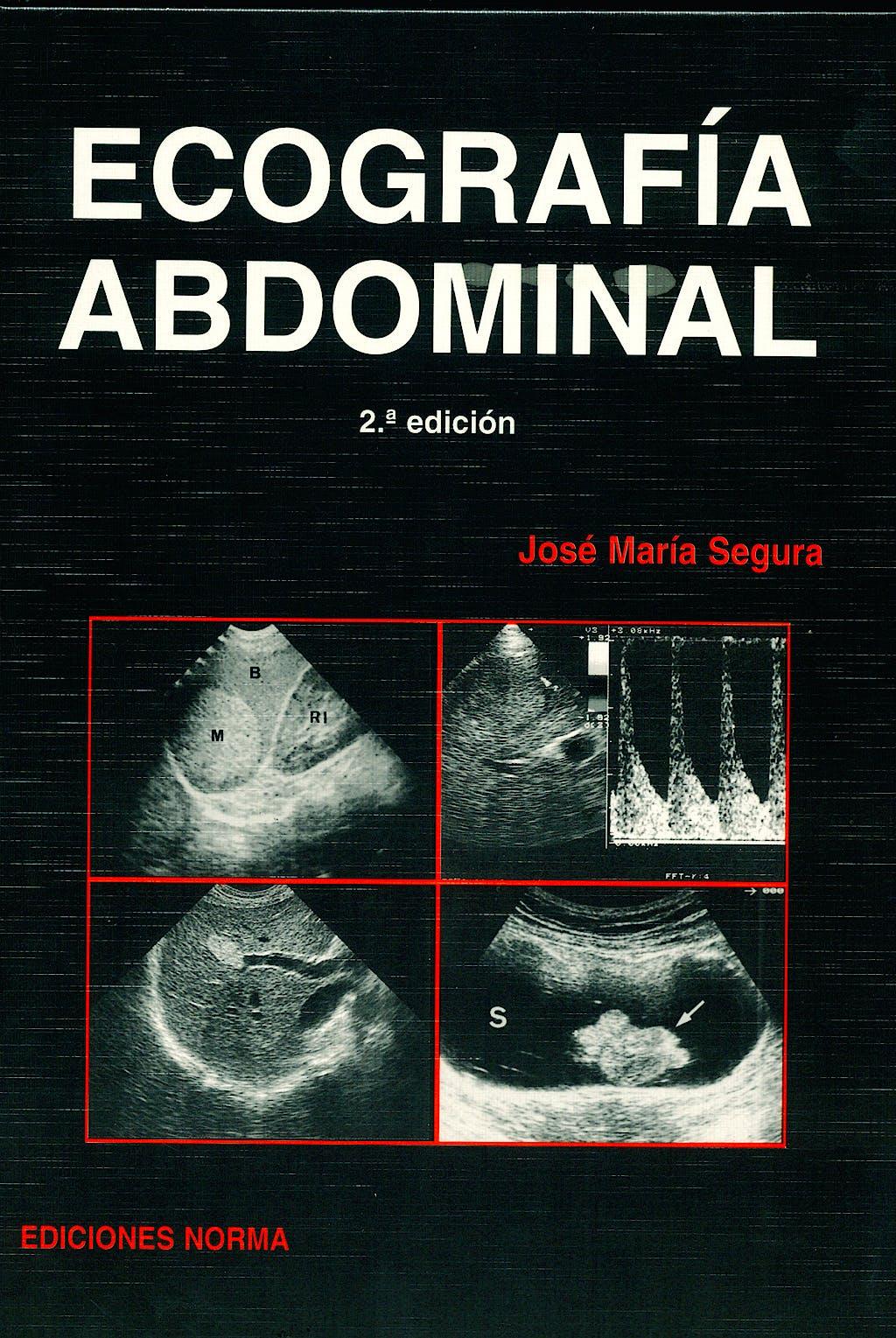 Portada del libro 9788474870718 Ecografía Abdominal