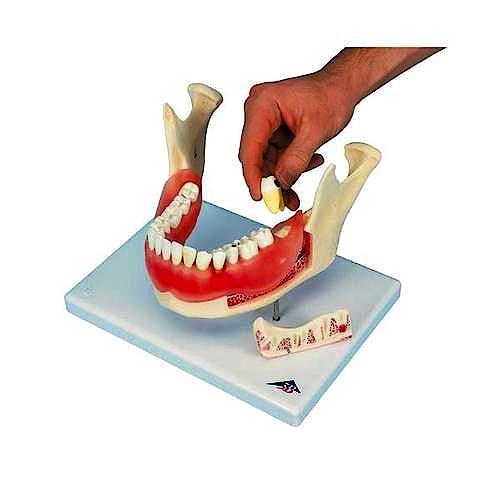 Afeccion Dental a 2 Aumentos de 21 Piezas